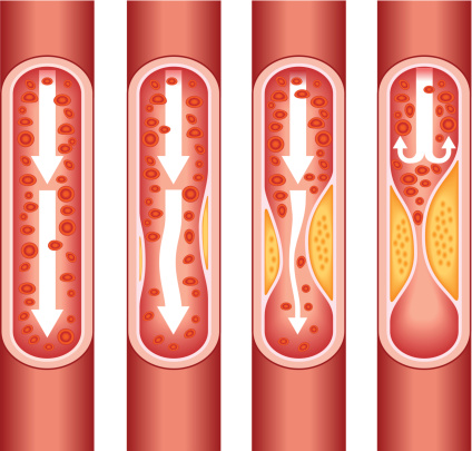 Does cholesterol cause atherosclerosis?