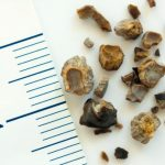 Can High Cholesterol Cause Kidney Stones