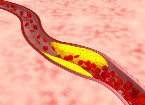 How To Remove Plaque From Arteries Without Surgery