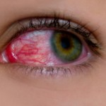 What Does It Mean to Have Cholesterol in Your Eyes